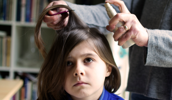 How to Spot and Treat Head Lice in Kids 2020
